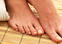 Haluksy - domowe sposoby zwalczania i leczenie naturalne